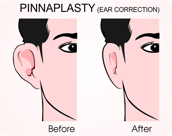 Pinnaplasty